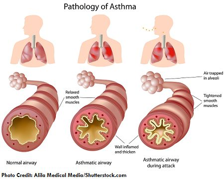 asthma picture